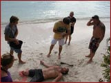 FPOS-I Traumatic Amputation Scenario on the Beach